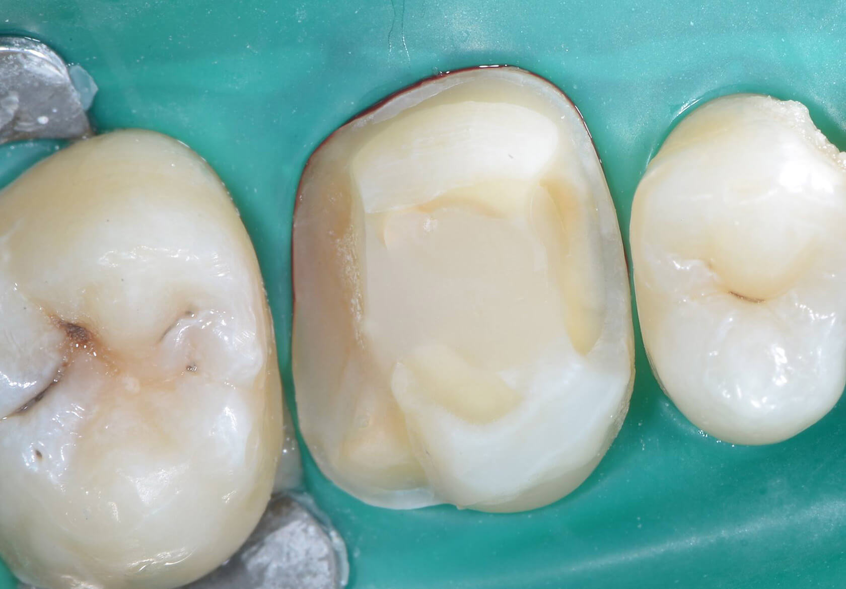indirect restoration of deep distal decay with deep margin