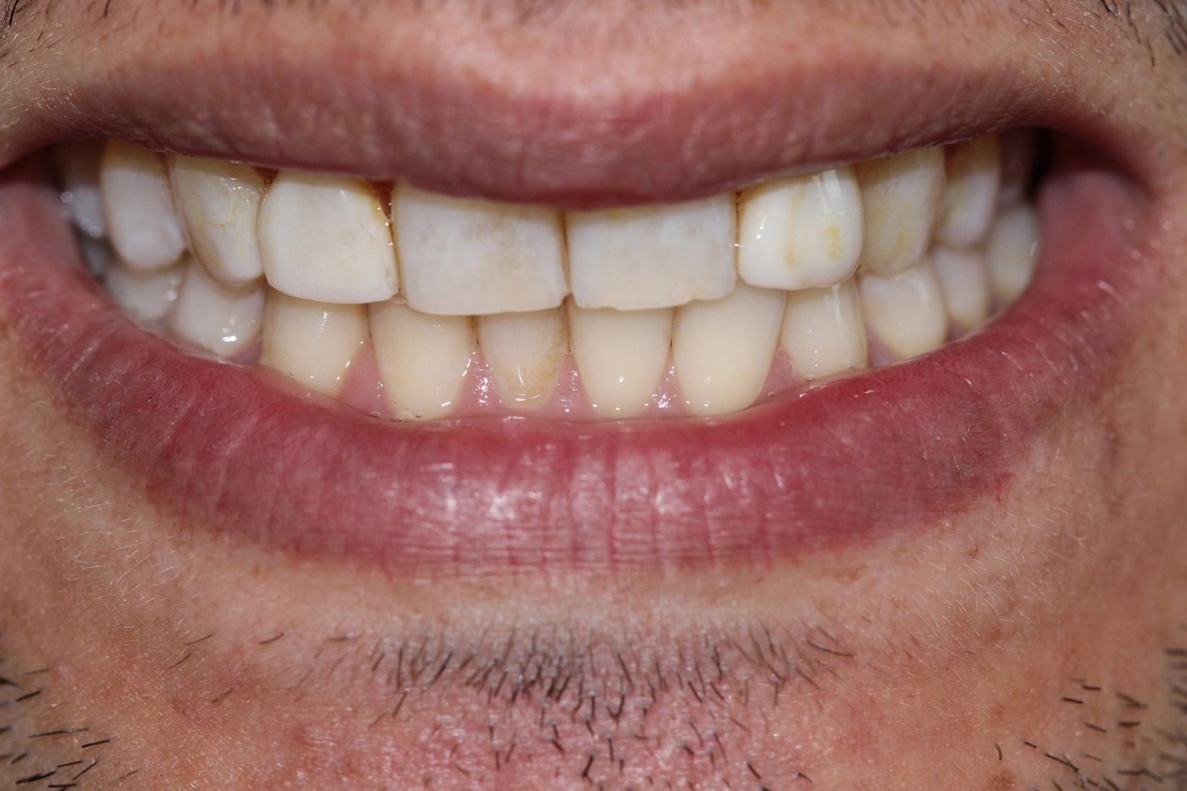 After Porcelain Veneers Bonded Whiter Teeth Oblique View