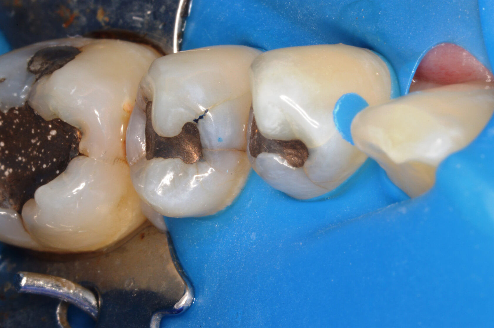 Using Occlusal Stamping Technique With The Greater Curve